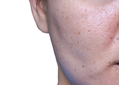 Can Laser Treatments Minimize Pore Size